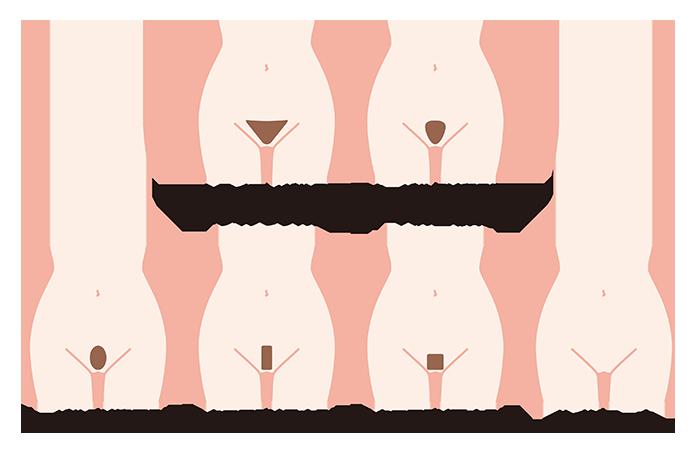 VIO処理6パターン
