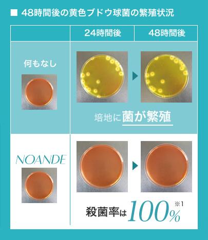 ノアンデ・アドバンスド トランスパの阻止円実験