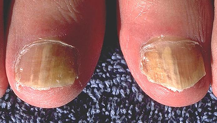 爪水虫の爪