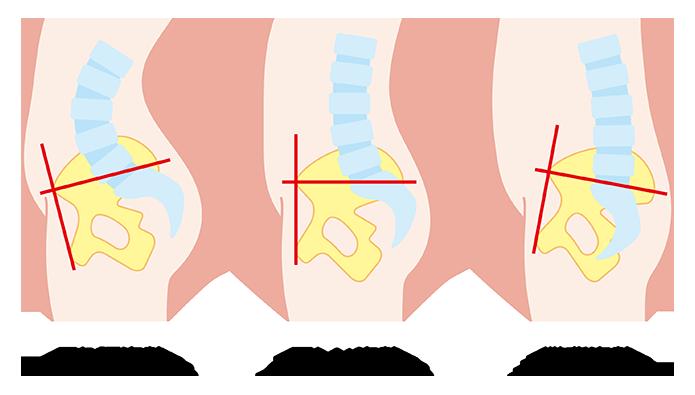 姿勢による骨盤の傾きの違い