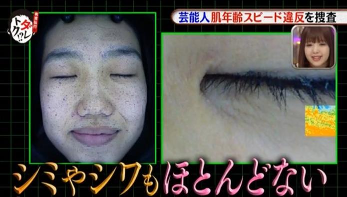 横澤夏子・シミ予想